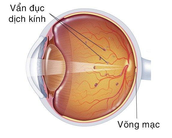Đục dịch kính – nguyên nhân thường gặp gây hiện tượng mắt nhìn thấy chấm đen